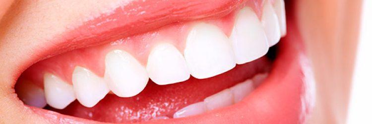 Ne féljünk a fogfehérítéstől!
